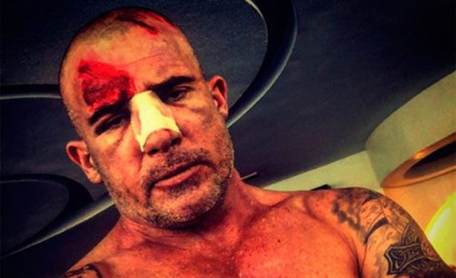 Dominic Purcell es herido durante el rodaje de Prision Break